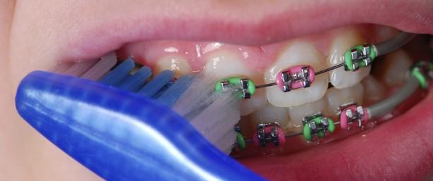 braces-614x257