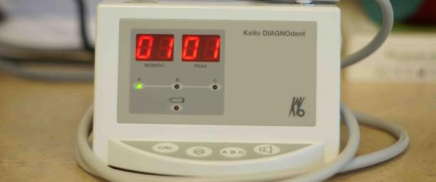 diagnodent-614x257